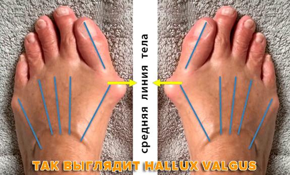 Как вылечить косточку на ноге, лечение Hallux Valgus