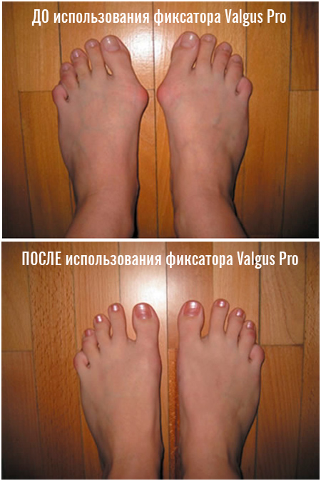 фиксатор valgus pro - лечение косточки на ноге