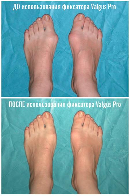 фиксатор valgus pro отзывы от лечения косточки на ноге