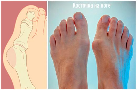 вальгусная деформация пальца стопы, Hallux Valgus, косточка на ноге